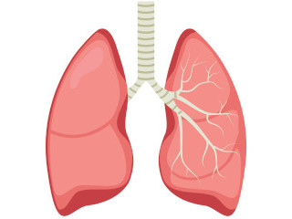 Lung recovery after pneumonia